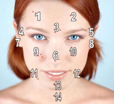 acne-areas-of-face1
