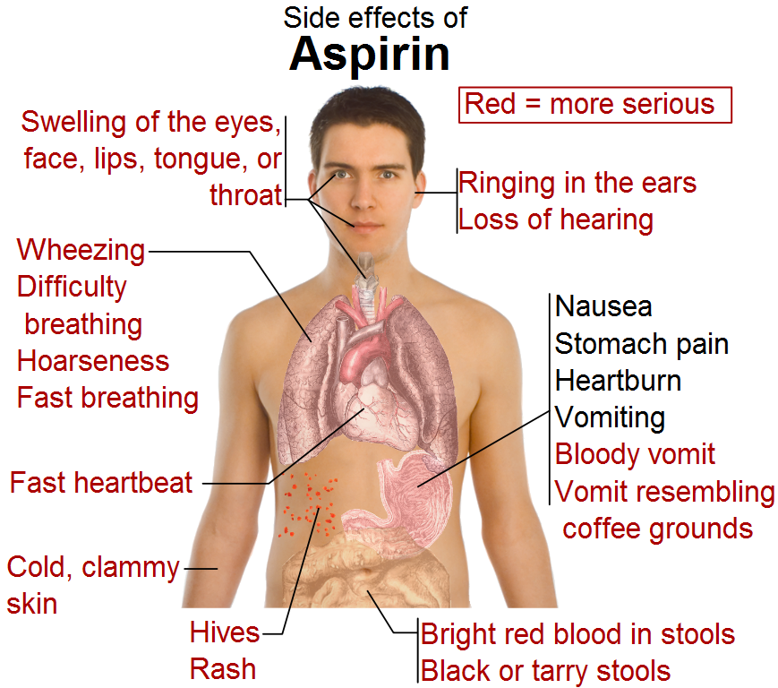 Side_effects_of_aspirin